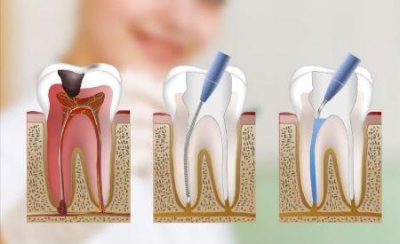 Todo lo que debes saber sobre la endodoncia